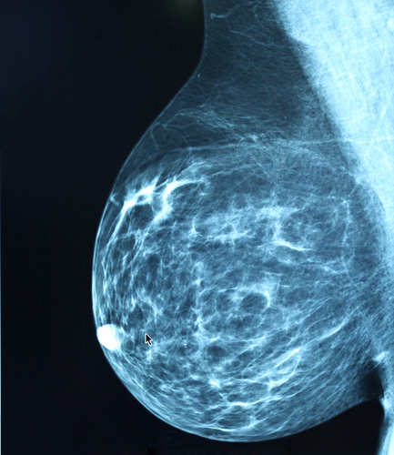 RT in breast cancer