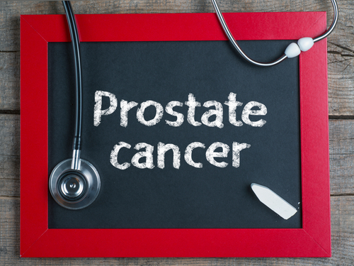 Study Reveals Gene Variants Can Predict Response to Prostate Cancer Radiotherapy