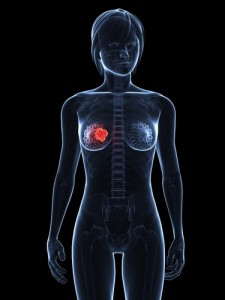 breast cancer radiotherapy and lung cancer