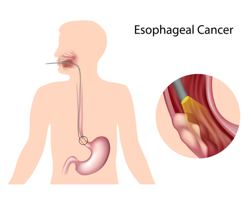 esophageal cancer Esophageal cancer is a type of digestive cancer that starts in the esophagus, which is the muscular tube that moves food and liquid from your mouth to your stomach the wall of the esophagus is made up of layers of tissue.