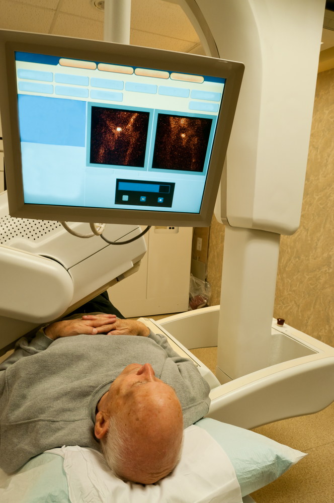 Radiation Therapy on Mesothelioma Patients Adds No Additional Benefit