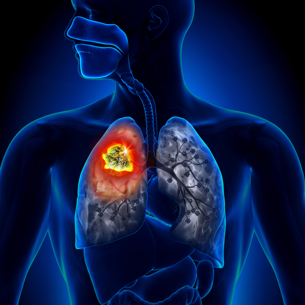 High Dose Radiotherapy Does Not Improve Lung Cancer Survival, According to Study
