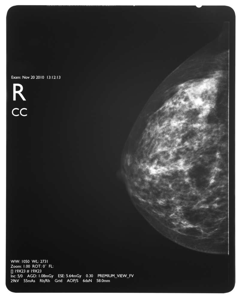 MR Spectroscopy Detects Biochemical Alterations in Pre-Invasive Breast Cancer Patients