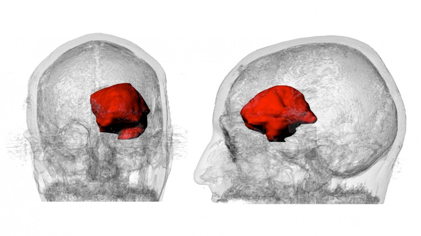 Steven Keating at MIT Studies His Own Brain Tumor Using MRI, 3D Printing