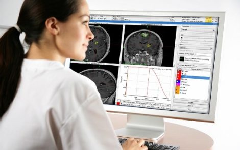 FDA approves MRI-guided focused ultrasound device to treat tremor
